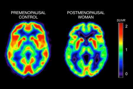 Brain activity pre and post menopause